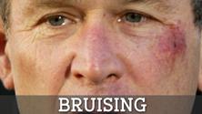 bruising
